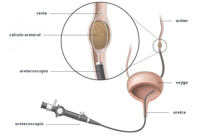 Uretroscopia